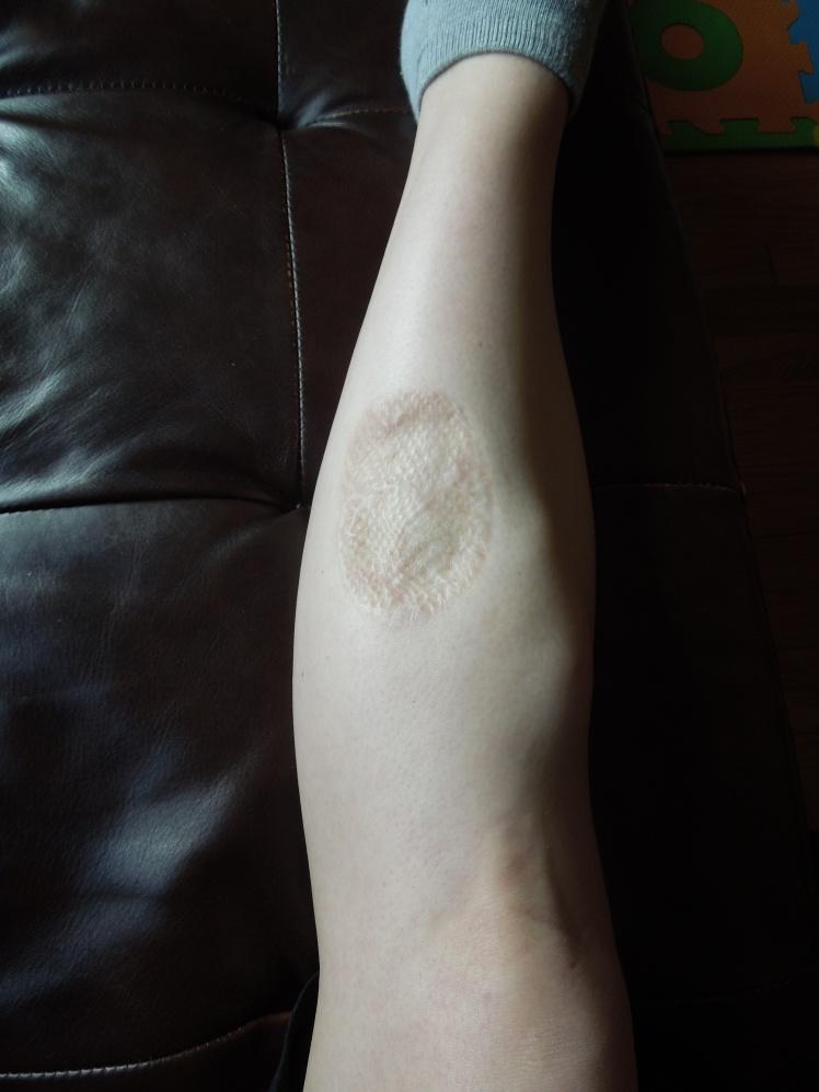 My leg now